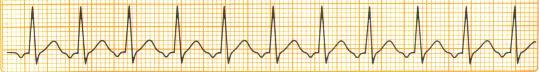 Gewusst wie: zählen Sie die Boxen auf dem EKG-Papier