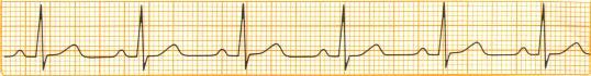 Wie man die Herzfrequenz auf einem 6 zweiter Streifen